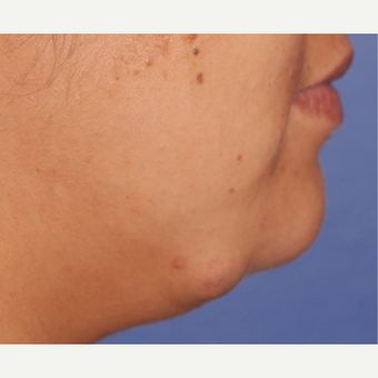 45-54 year old woman treated with Facial Reconstructive Surgery before 3625150