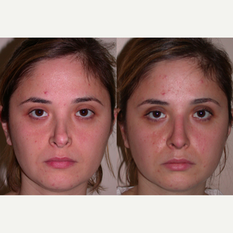 25-34 year old woman treated with Revision Rhinoplasty before 3521396