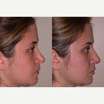 25-34 year old woman treated with Revision Rhinoplasty after 3521396