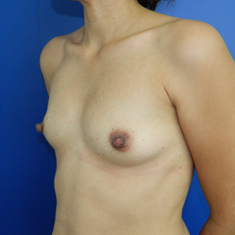 35-44 year old woman treated with Breast Implants before 3293691