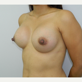 35-44 year old woman treated with Breast Implants after 3293691