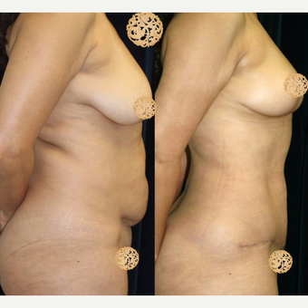 45-54 year old woman treated with Mommy Makeover before 3099710