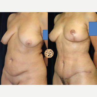 45-54 year old woman treated with Mommy Makeover after 3099710
