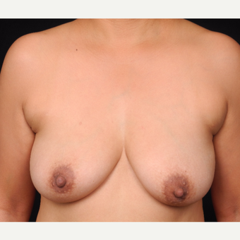 45-54 year old woman with DIEP flap breast reconstruction before 3742657
