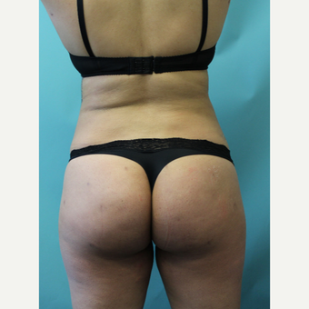 18-24 year old woman treated with Smart Lipo after 3437439