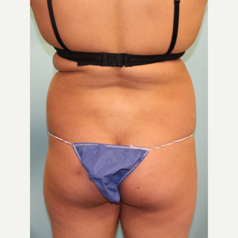 18-24 year old woman treated with Smart Lipo before 3437439