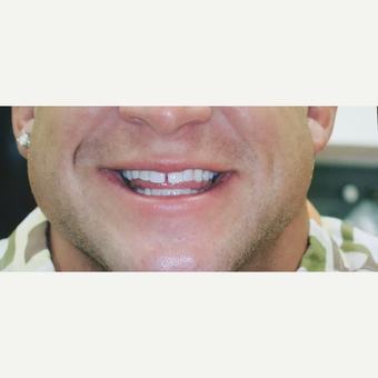 25-34 year old man treated with Dental Crowns for upper and lower arch before 3617305