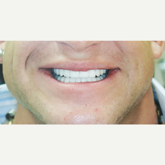 25-34 year old man treated with Dental Crowns for upper and lower arch after 3617305