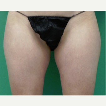 45-54 year old woman treated with SculpSure before 3417293