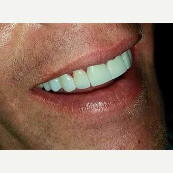 35-44 year old man treated with Smile Makeover after 3221133