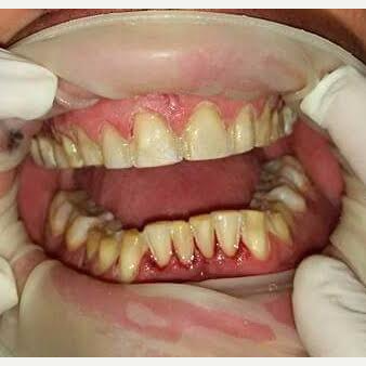35-44 year old man treated with Smile Makeover before 3221133