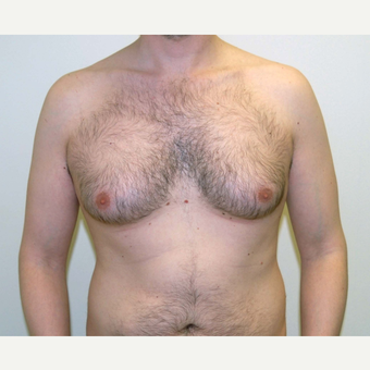 25-34 year old man treated with Male Breast Reduction before 3383240