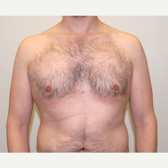 25-34 year old man treated with Male Breast Reduction after 3383240