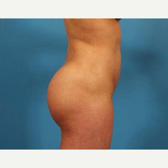 25-34 year old woman treated with Brazilian Butt Lift after 3093503