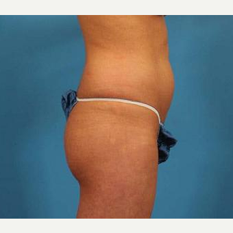 25-34 year old woman treated with Brazilian Butt Lift before 3093503