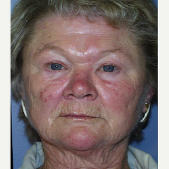 65-74 year old woman treated with Laser Resurfacing before 3711320