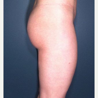 25-34 year old woman treated with Liposuction after 3664508