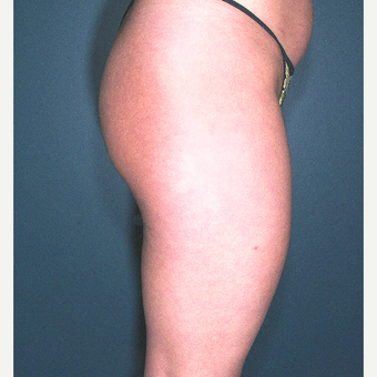 25-34 year old woman treated with Liposuction before 3664508