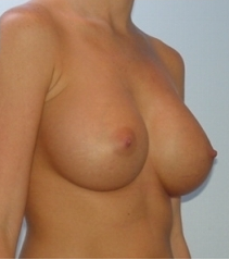 Transaxillary breast augmentation (BEWISE) after 235354
