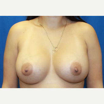 25-34 year old woman treated with Breast Augmentation after 3104607