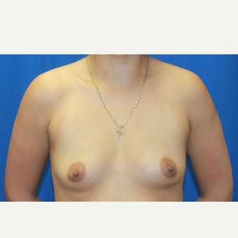 25-34 year old woman treated with Breast Augmentation before 3104607