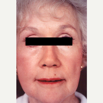 65-74 year old woman treated with Chemical Peel after 3543530