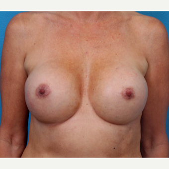 35-44 year old woman treated with Breast Implant Revision after 3366760