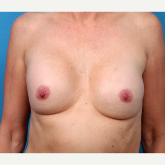 35-44 year old woman treated with Breast Implant Revision before 3366760