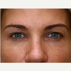 25-34 year old woman treated with Botox after 3604265