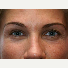 25-34 year old woman treated with Botox before 3604265