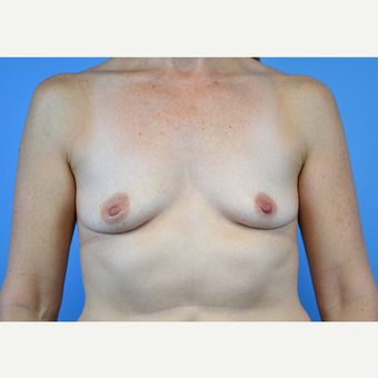 45-54 year old woman treated with Breast Implants before 3440066