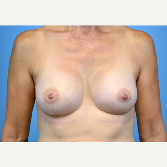 45-54 year old woman treated with Breast Implants after 3440066