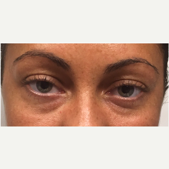 25-34 year old woman treated with Voluma before 3331665