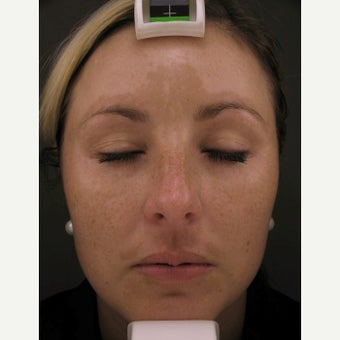 Obagi NuDerm and Botox before 2110303