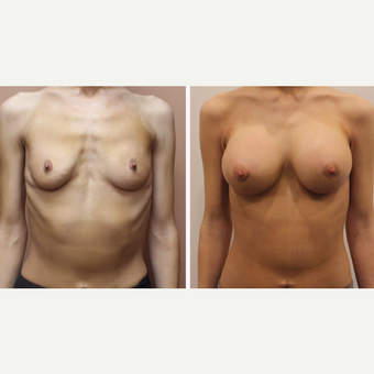 25-34 year old woman treated with Breast Augmentation before 3333316