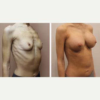 25-34 year old woman treated with Breast Augmentation after 3333316