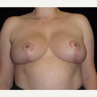 41 year old woman treated with Breast Lift after 3026035