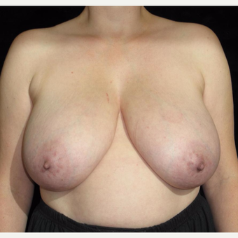 41 year old woman treated with Breast Lift before 3026035