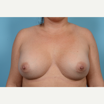 35-44 year old woman treated with Breast Augmentation after 3782114