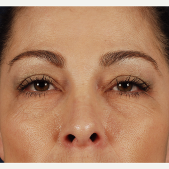 45-54 year old woman treated with Eyelid Surgery before 3339945