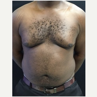 25-34 year old man treated with Male Breast Reduction before 3218528