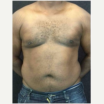 25-34 year old man treated with Male Breast Reduction after 3218528