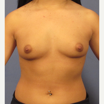 25-34 year old woman treated with Breast Augmentation before 3077094