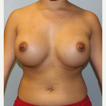 25-34 year old woman treated with Breast Augmentation after 3077094