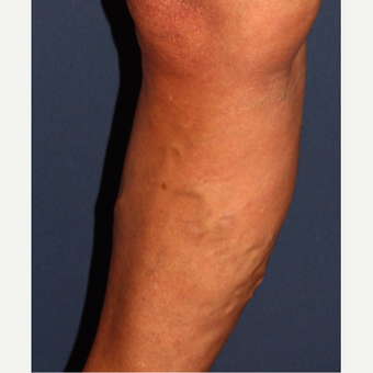 45-54 year old woman treated with Sclerotherapy before 3244568
