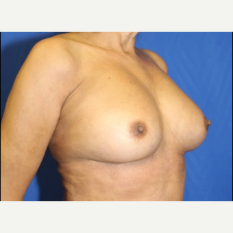 Fat Transfer to Breast (side view QR)