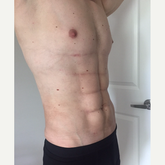 25-34 year old man treated with Liposculpture after 3174013