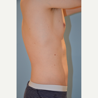 25-34 year old man treated with Liposculpture before 3174013