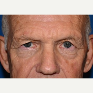 65-74 year old man treated with Brow Lift before 3388567