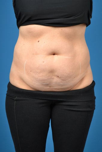 35-44 year old woman treated with SculpSure before 3414100